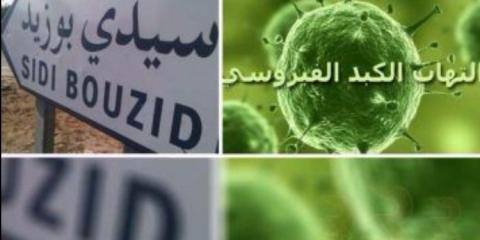إصابة 9 تلاميذ بالتهاب الكبد الفيروسي صنف (أ) في معتمدية جلمة